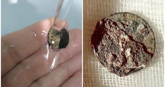 Münze befand sich in der Nase eines Mannes. Quelle: Screenshot Youtube
